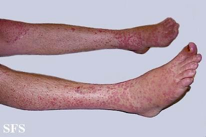 【紫癜性肾炎预防和护理】-过敏性紫癜肾炎